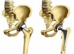 Восстановление сустава при коксартрозе 156